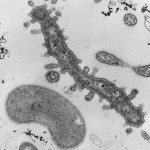 Anoxygenic phototrophic bacteria from the anoxic zone of the Pettaquamscutt River, RI; Prosthecochloris sp. (with prosthecae) and Chromatium sp. (with vesicular internal membranes) [TEM thin section]